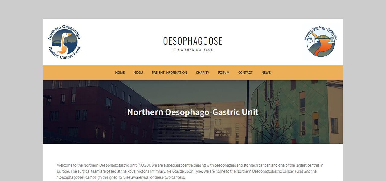 Oesophagoose